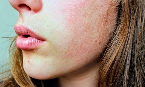 Nueva tendencia: Skin Positive